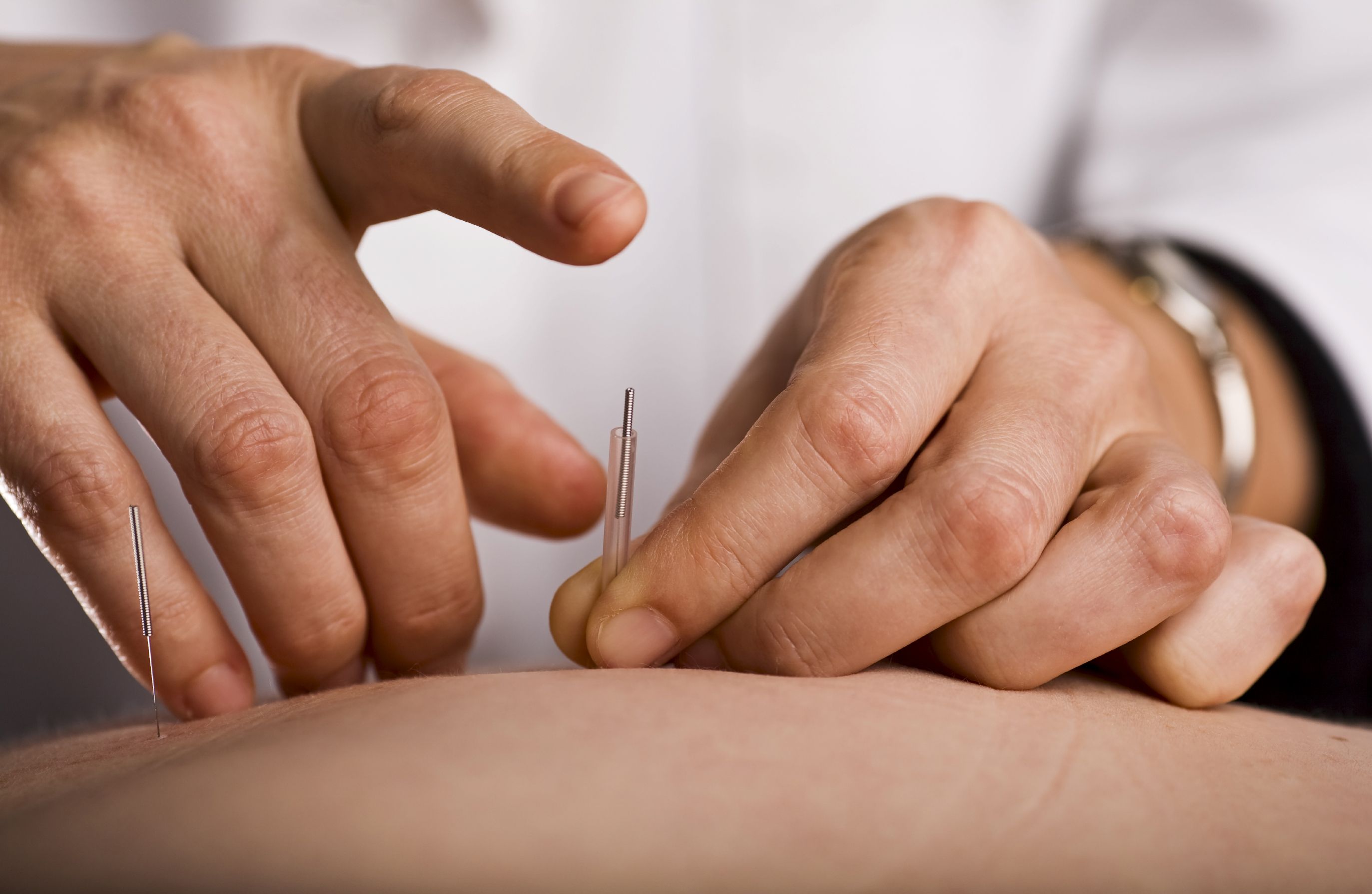 acupuncturist in glendale performing acupuncture on patient