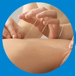 Mira Mesa acupuncture