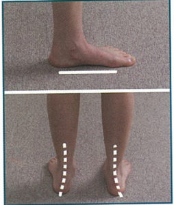 Figure 4. Pronated, flat foot