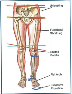 Figure 5. Effects of excessive pronation