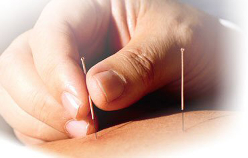 acupuncture_500.jpg