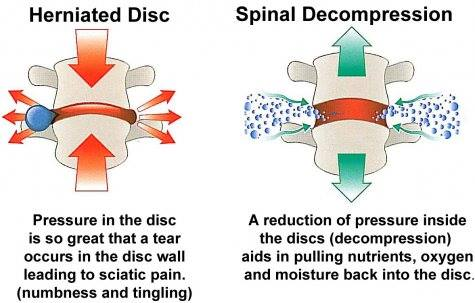 Disc Decompression