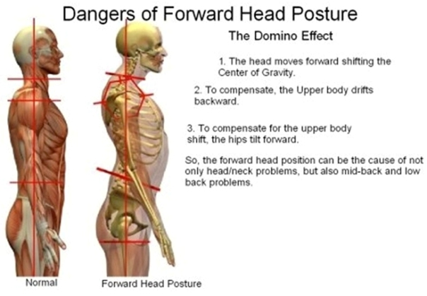 text neck, forward head posture, neck pain, headaches, upper back pain, shoulder pain, low back pain, posture