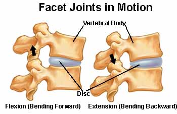 low back pain, facet syndrome