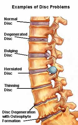 Arlington Heights Chiropractor Disc disease Photo