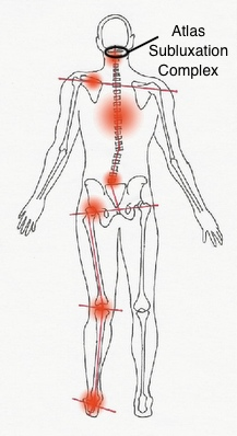 Fibromyalgia Treatment in Rochester, NY