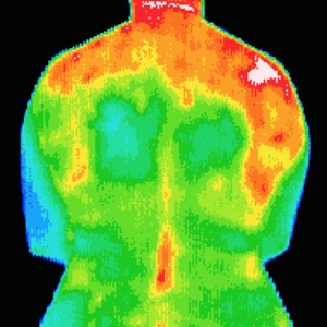 Thermography Half Body Scan