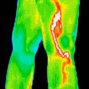 Thermography - region of interest scan