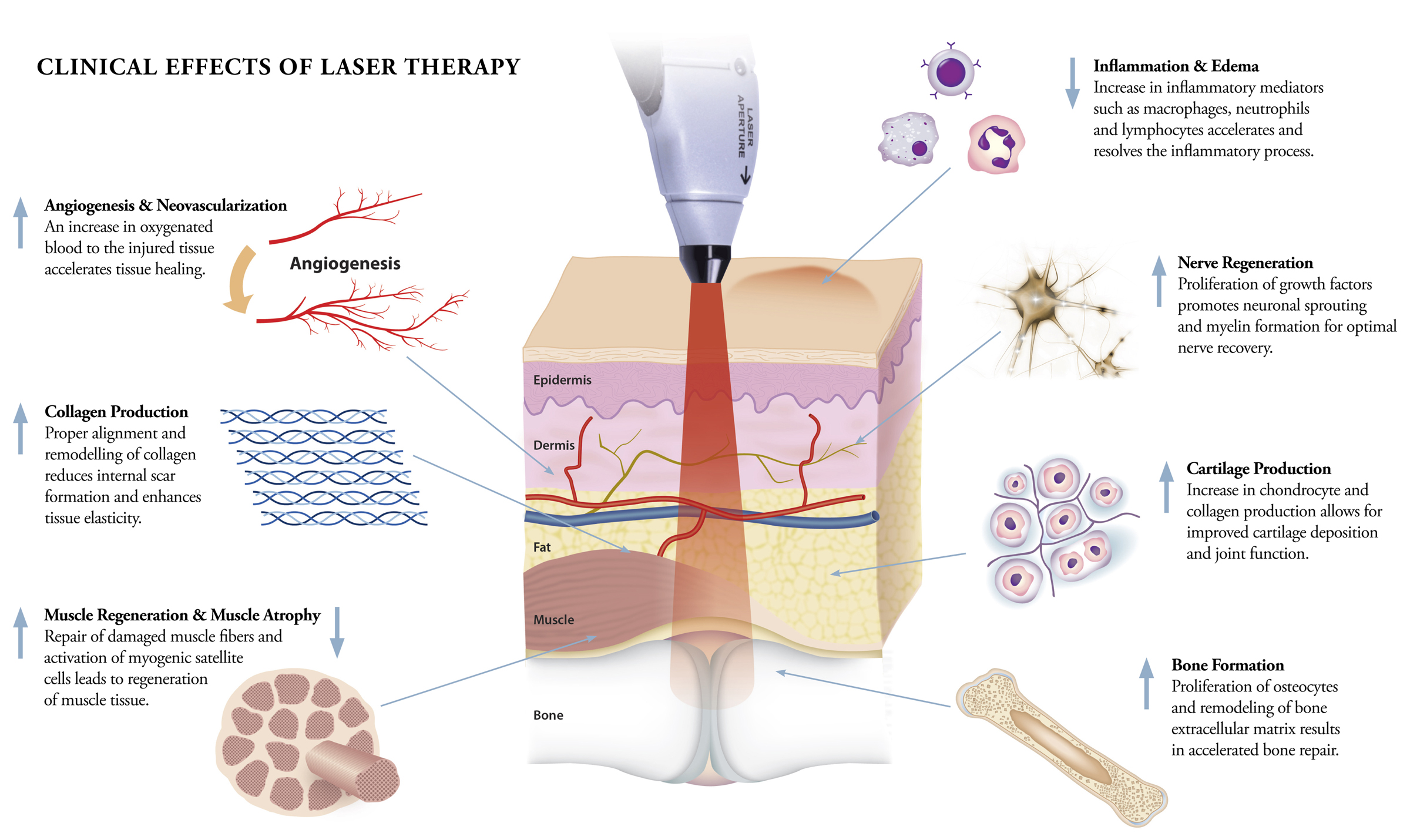 Tissue healing and low level laser article