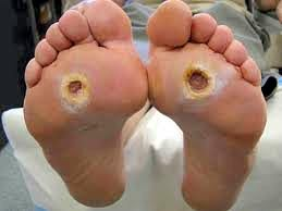 The sugar affects the nerves of the feet