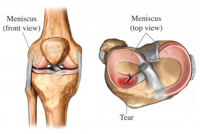 knee_meniscus_normal_v2.jpg