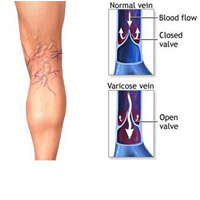 Varicose Veins and Swollen Ankle Care