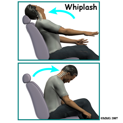 Whiplash_Injury_Car_Accident_Chiropractor_Bozeman.jpg