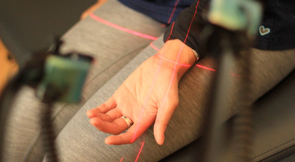 Carpal Tunnel Syndrome treatment NYC using cold laser therapy class 4 hot laser, graston technique, Active Release Technique and Medical Massage by chiropractors in NYC at Dr. Steven Shoshany's NYC Chiropractic Center for Spinal Decompression