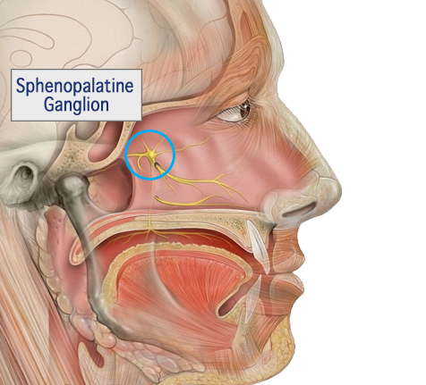 Sphenopalatine Ganglion Block for Migraine & Headache Relief