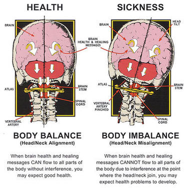 diagram of healthy aligned upper cervical spine vs misaligned upper cervical spine that results in health problems